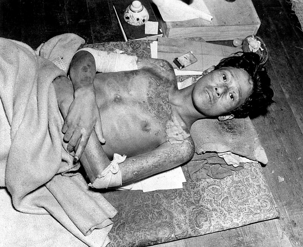 Japanese man - a victim of the U.S. atomic bombing of Nagasaki